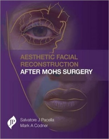 Aesthetic Facial Reconstruction after Mohs Surgery-UNIVERSAL 26.04-UNIVERSAL BOOKS-UNIVERSAL BOOKS
