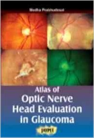 ATLAS OF OPTIC NERVE HEAD EVALUATION IN GLAUCOMA -Prabhudesai-jayppe-UNIVERSAL BOOKS