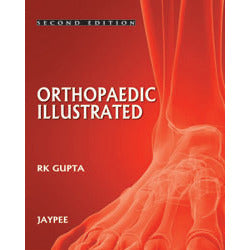 ORTHOPEDICS ILLUSTRATED -Gupta-jayppe-UNIVERSAL BOOKS