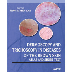 ATLAS AND SHORT TEXT DERMOSCOPY AND TRICHOSCOPY IN DISEASES OF THE BROWN SKIN -Uday-jayppe-UNIVERSAL BOOKS