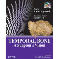TEMPORAL BONE: A SURGEON`S VISION -Agarwal-REVISION - 26/01-jayppe-UNIVERSAL BOOKS