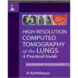 HIGH RESOLUTION COMPUTED TOMOGRAPHY OF THE LUNGS A PRACTICAL GUIDE -Karthikeyan-jayppe-UNIVERSAL BOOKS