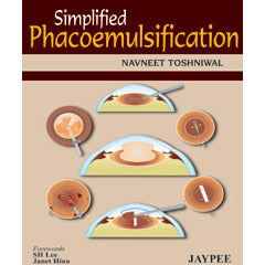 SIMPLIFIED PHACOMULSIFICATION -Toshniwal-jayppe-UNIVERSAL BOOKS