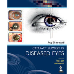 CATARACT SURGERY IN DISEASED EYES -Chakrabarti-jayppe-UNIVERSAL BOOKS