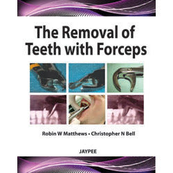 THE REMOVAL OF TEETH WITH FORCEPS -Matthews - UNIVERSAL BOOKS