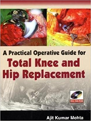 A practical Operative Guide for Total Knee and Hip Replacement-jayppe-UNIVERSAL BOOKS
