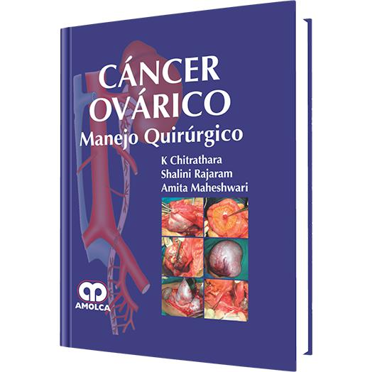 Cancer Ovarico - Manejo Quirurgico-REVISION - 23/01-amolca-UNIVERSAL BOOKS