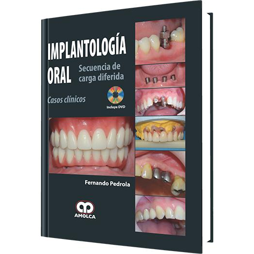 Implantologia Oral - Secuencia de Carga Diferida-amolca-UNIVERSAL BOOKS