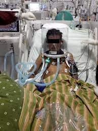 Helmet CPAP in use in Bangladesh for Covid19 ARDS