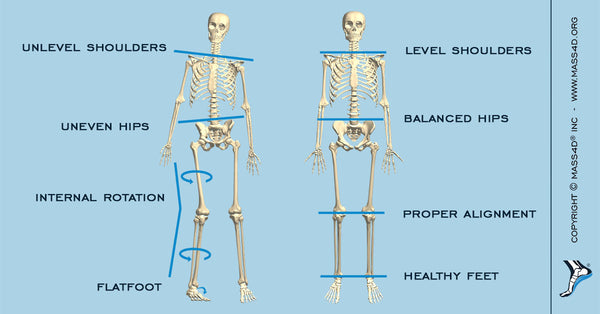 Flatfoot Vs Healthy Foot Posture