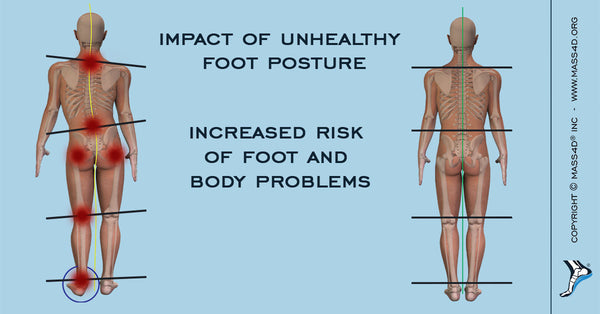 Impact of Unhealthy Foot Posture