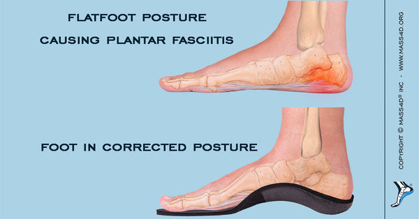 ab58787740 How Flatfoot Posture Cause Plantar Fasciitis - MASS4D® Foot Orthotics