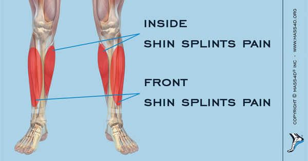 Causes And Symptoms Of Shin Splints Mass4d Insoles Mass4d