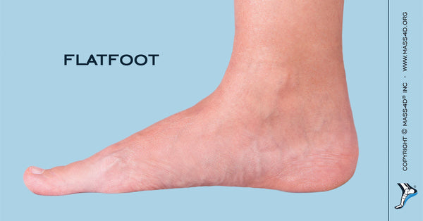is being flat footed really bad mass4d insoles and foot orthotics