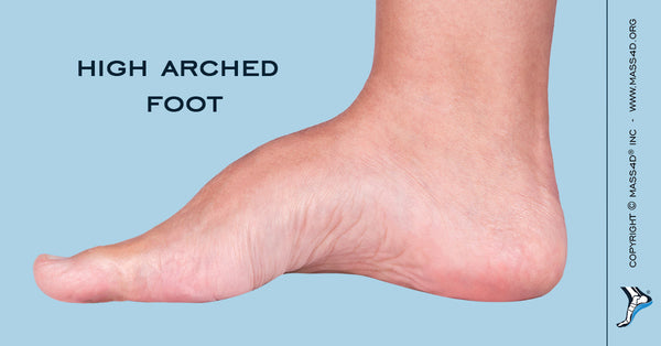 Causes and Symptoms of High Arched Foot