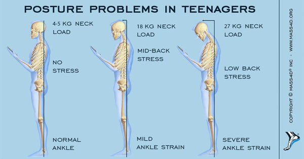 Poor Posture In Teenagers