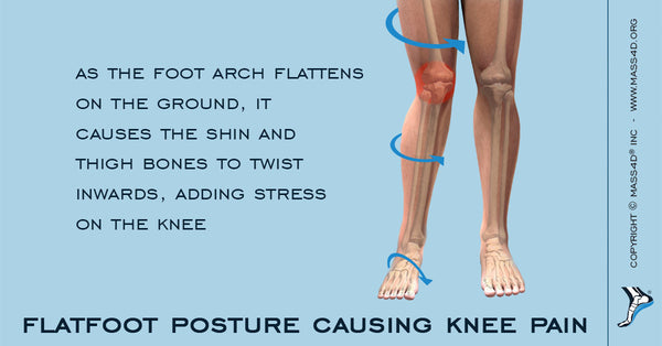 Flat Feet Causing Knee Pain