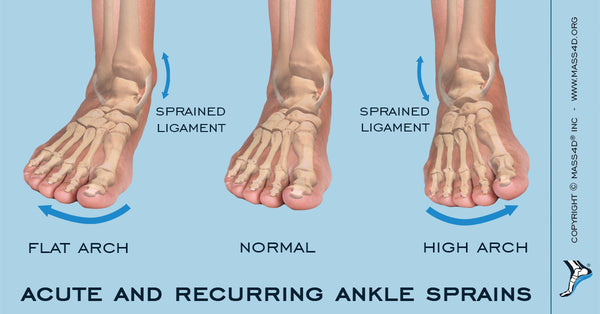 Ankle Sprains