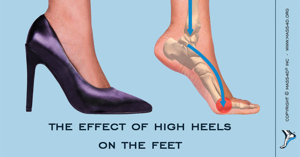 Effect of High Heels on Feet