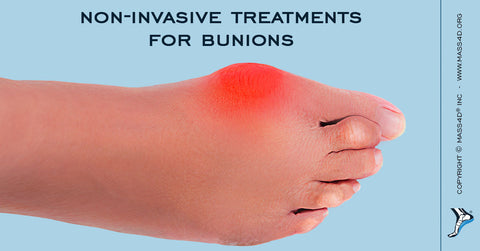 Non-Invasive Bunion Treatments