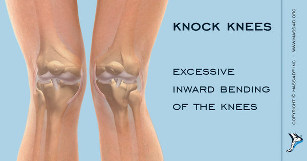 knock knees also known as genu valgum is a condition in which the feet are wider apart than the knees with the knees pointed inwards