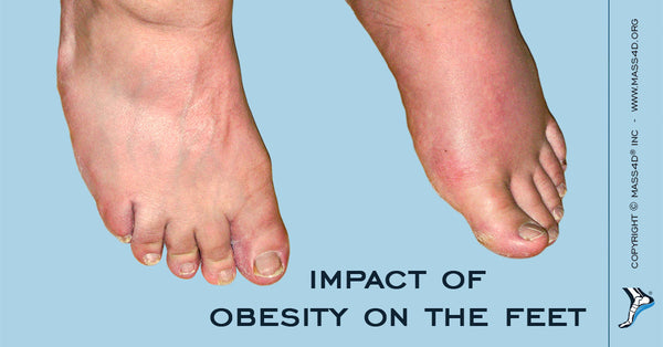 Impact of obesity on the feet