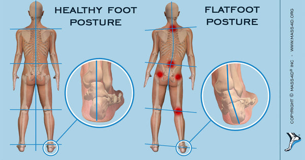 Flat Feet Affecting Posture