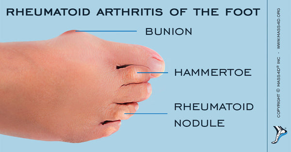 Is Rheumatoid Arthritis In The Feet Common Mass4d Foot Orthotics