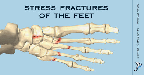 Stress Fractures of the Foot – Why Are They So Common in Sports?
