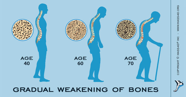 How Osteoporosis Affects Your Bones
