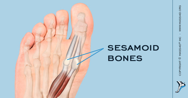 Taking A Closer Look At Sesamoiditis