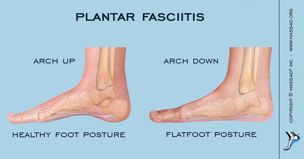 Flat Feet Causing Plantar Fasciitis