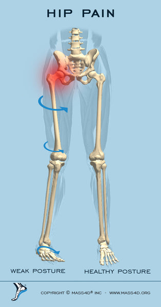 What Causes Hip Pain?   MASS4D® Insoles