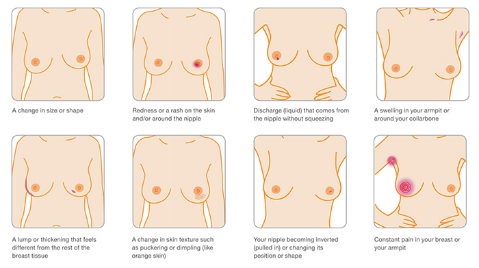 breast-cancer-symptoms-2