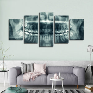 Dental X Ray Multi Panel Canvas Wall Art - Dental