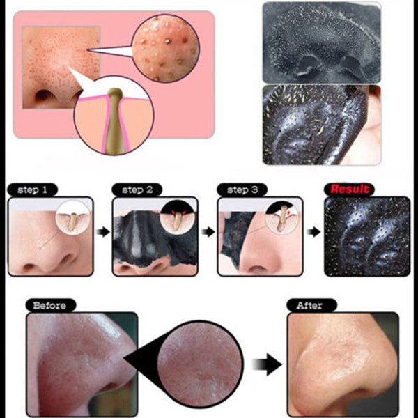 100% Original Black Mask Blackhead Remover 75% OFF