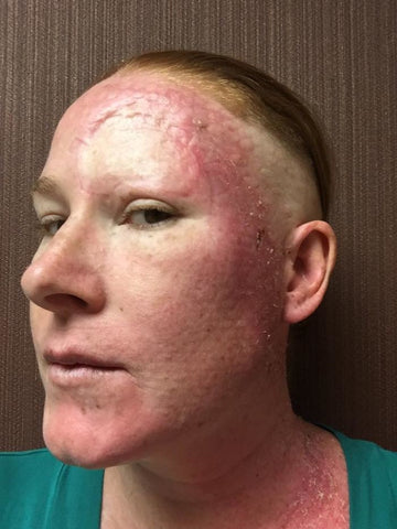 Bethany after skin cancer treatment