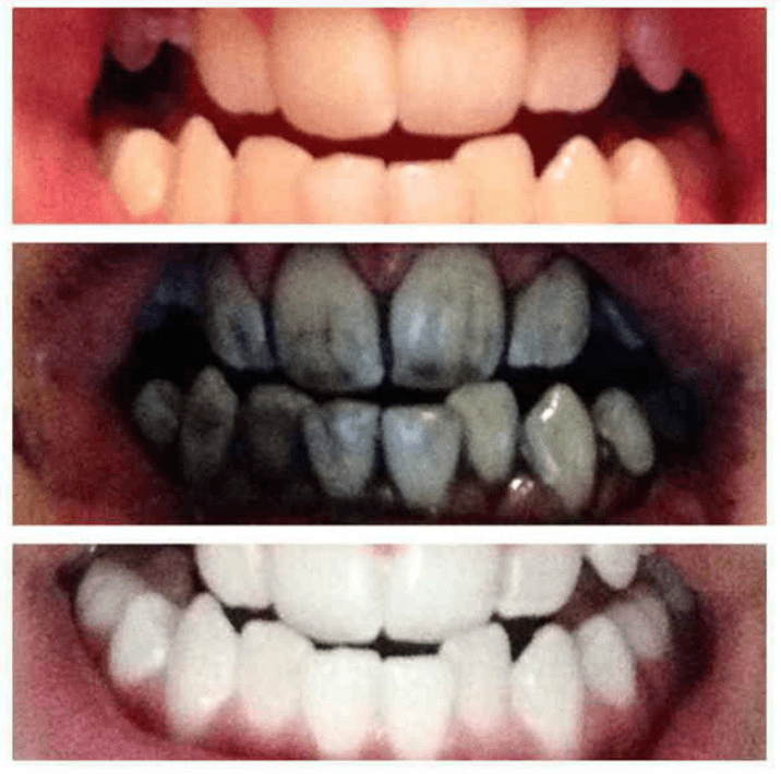 All Natural Charcoal Teeth Whitener Toothpaste Style Well Spent