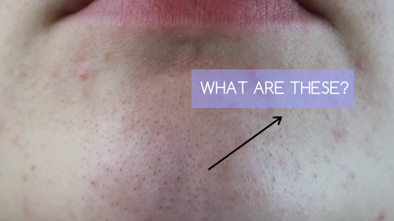 Blackheads Vs Sebaceous Filaments: What Are They?