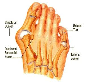 A bunion is a deformity of the foot