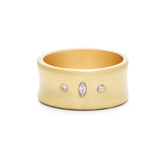 Diamond Convex Ring