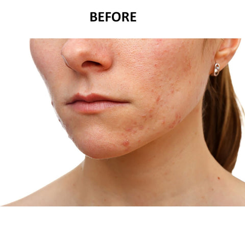 BioClear Acne and Scar Oil-helps remove acne