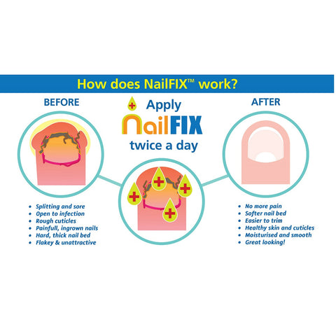 BioClear NailFIX - Ingrown toenail & skin softener