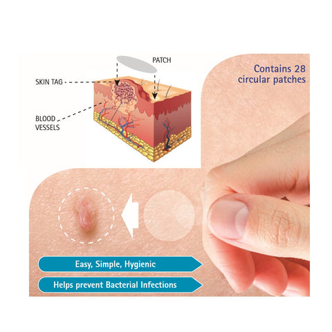 Biodermal Skin Tag  Patches