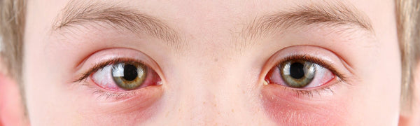 Pink Eye (Conjunctivitis) Symptoms, Treatments And Prevention