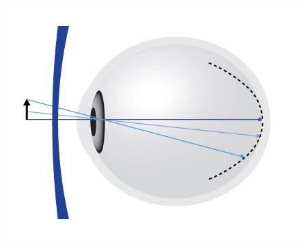 A corrected myopic eye with MyoVision™. The image is projected on the retina centrally, BUT in front of (or on) the retina peripherally