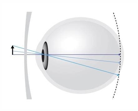 A corrected myopic eye with a flat-form lens. The image is projected on the retina centrally, BUT behind the retina peripherally