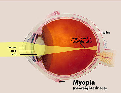 myopia eyesight