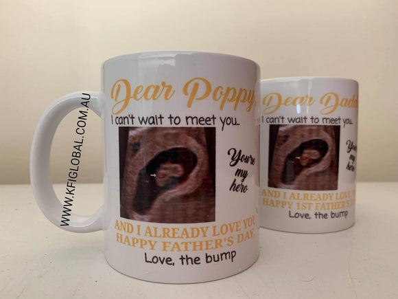 I can't wait to meet you ultrasound Mug Design - Father's Day