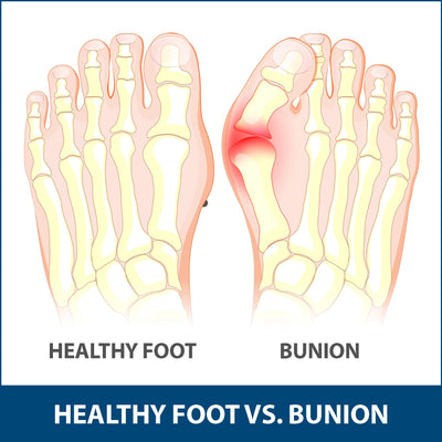 Bunions Explained